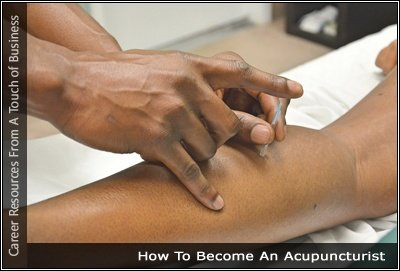 Image of an someone receiving acupuncture performing